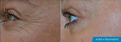 exilis_ultra_face_before_after_eyes.jpg