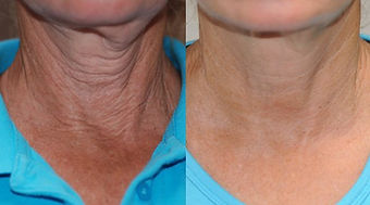 neck-Before-after.jpg