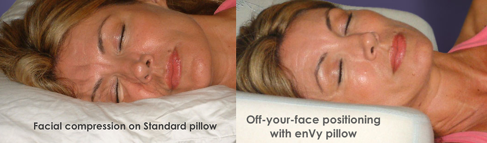 Sleep wrinkles caused by your pillow