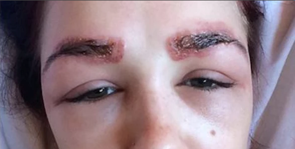 microblading complications