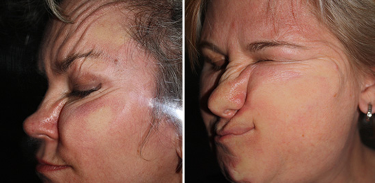 Wrinkles caused by side sleeping