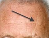 sleep lines on forehead