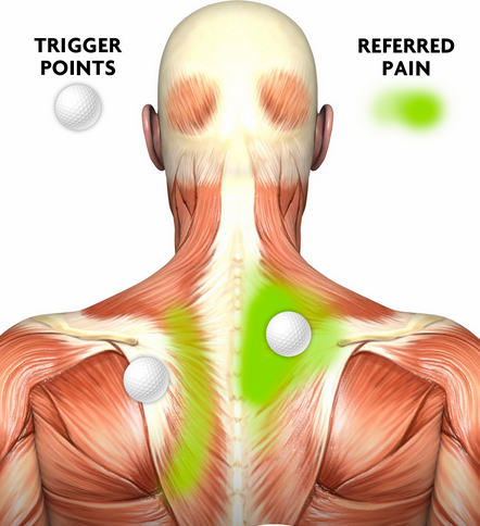 Trigger Points Is That Knot In Your Neck Really A