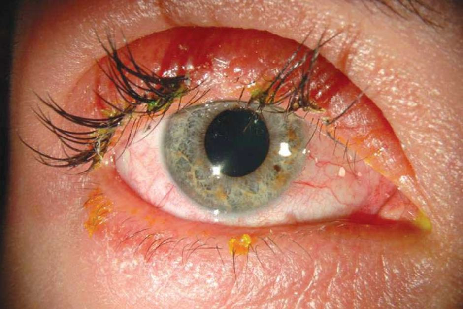 Eye lash extention infections