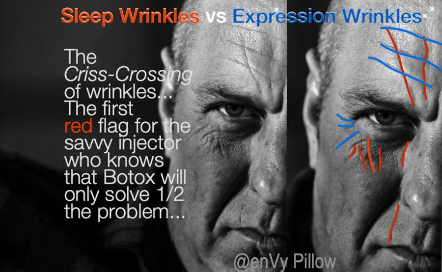 Criss crossing of wrinkles 750px.jpg