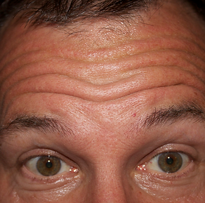 forehead expression lines