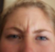 frown line wrinkles