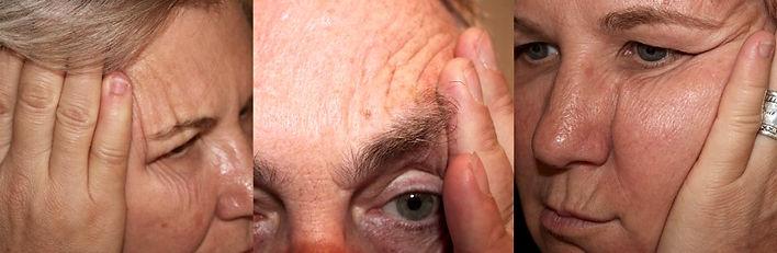 How to identify sleep wrinkles