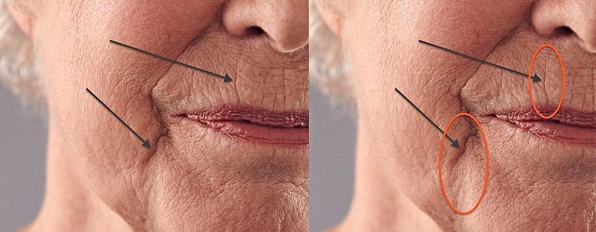 Sleep Wrinkles around the mouth