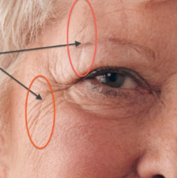 sleep lines around eyes