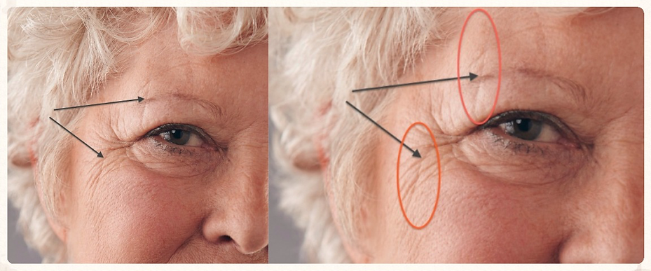 sleep wrinkles around the eyes