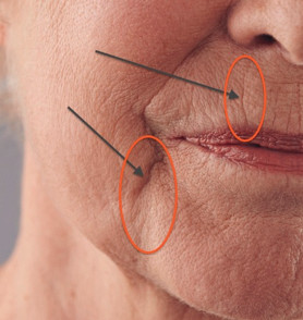 sleep lines on chin and mouth