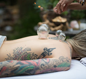Cupping+therapy.jpg