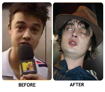 pete doherty before after