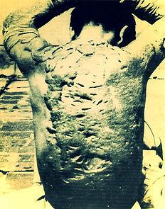 hiroshima burns victim