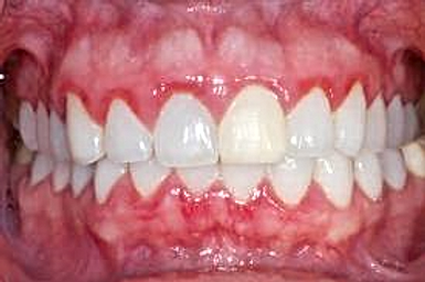 gingivitis.png