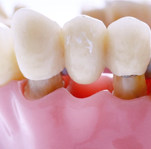 dental-bridges-vs-dental-implants_1-1538