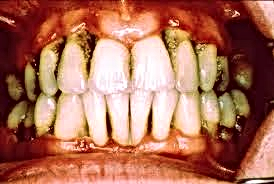 periodontitis.png