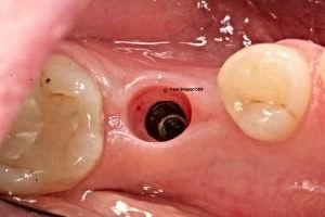 CES_implant_04-300x200.jpg