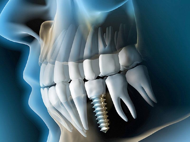 implant_7429-24