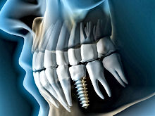 implant_7429-24.jpg