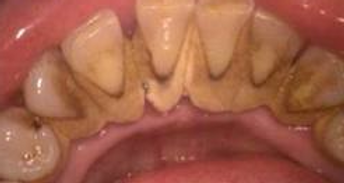 diş taşı.png