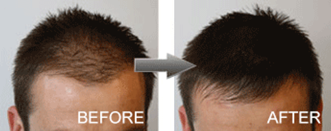 hair-fibres-male-before-and-after_5f8681