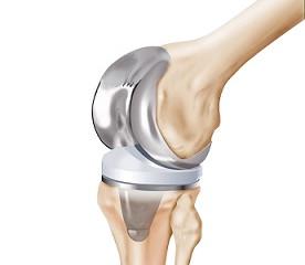 Novas estratégias para usinar componentes ortopédicos