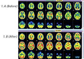 HEG Neurofeedback Success