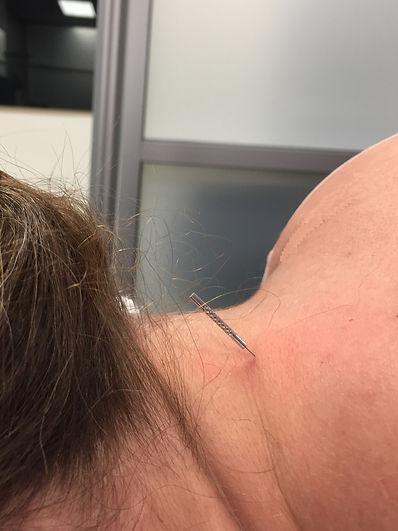 Dry Needling Cervical2.jpg