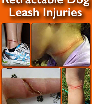 Why we don't allow retractable leashes