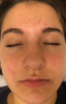 acne care 2.png