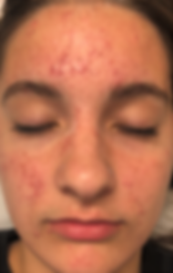 acne care 1.png