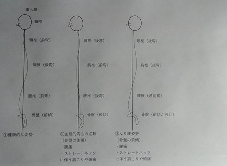 姿勢と腰痛(反り腰、円背など)の関係