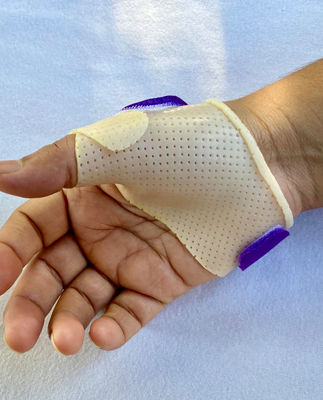 Therapy treatments for hands and thumbs California