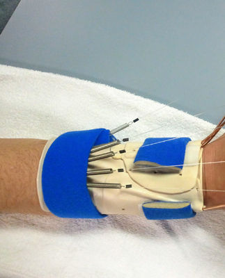 Therapy treatments for hand and arm injuries California