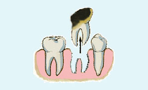 Decayed tooth extraction