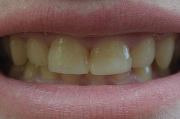 Emergency cosmetic dental bonding repair of broken teeth