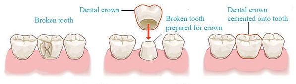 Dental crown cap fixing broken tooth