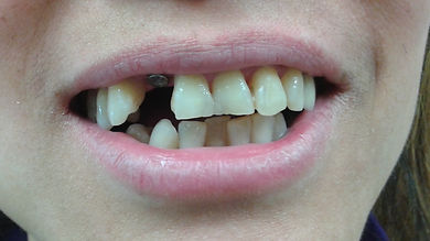 Dental implant crown replace missing tooth