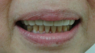 Snap-on smile esthetic replacement of missing teeth