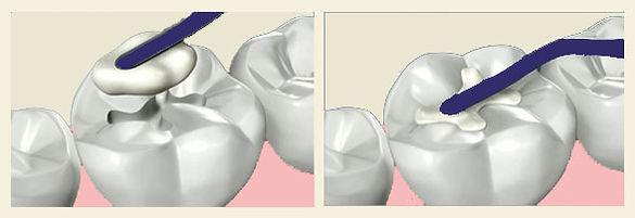 Dental bonded white fillings