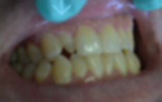 Cosmetic dental bonding repair of misshapen tooth