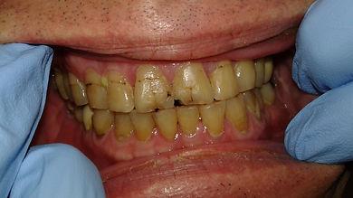 Cosmetic dental bonding repair