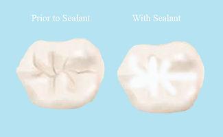 Dental sealant reduce decay