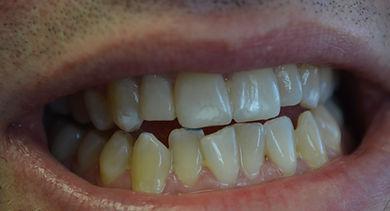 Cosmetic dental bonding repair of misshapen tooth