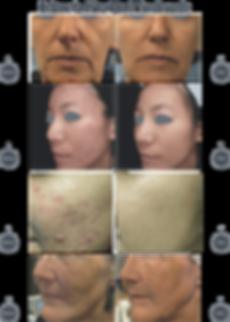 tixel3.png
