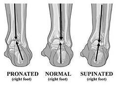 foot and heel pain.png