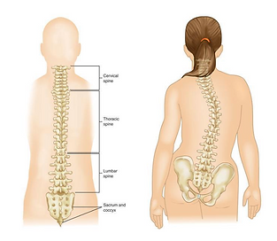 Physical Therapy for Scoliosis.png
