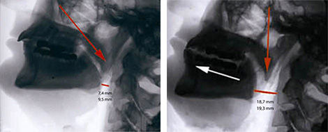X-ray shows how the SnorBan mouthpiece moves the lower jaw forward allowing for open airways